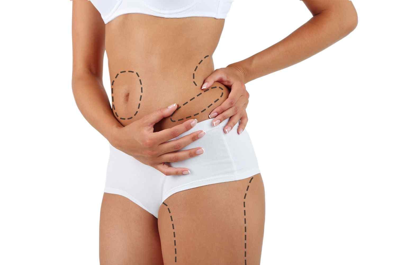 https://centrosanas.com/wp-content/uploads/2017/08/cosmetic-surgery-blog-01.jpg