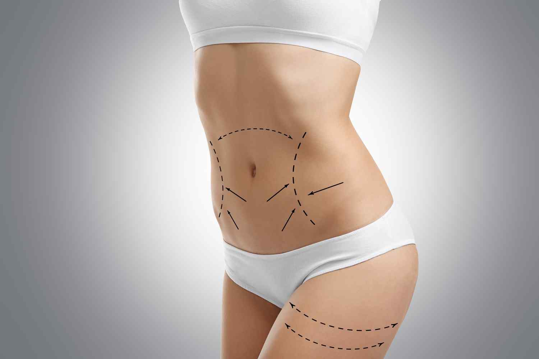 https://centrosanas.com/wp-content/uploads/2017/08/cosmetic-surgery-blog-06.jpg