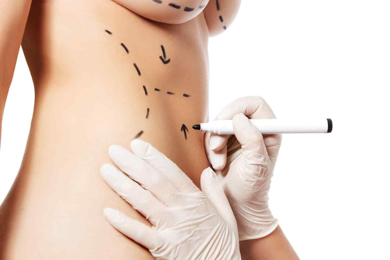 https://centrosanas.com/wp-content/uploads/2017/08/cosmetic-surgery-blog-11.jpg