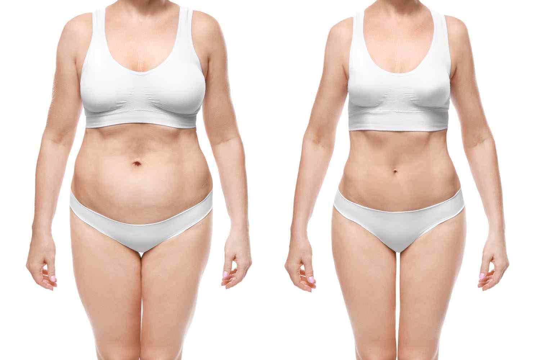 https://centrosanas.com/wp-content/uploads/2017/08/cosmetic-surgery-blog-24.jpg